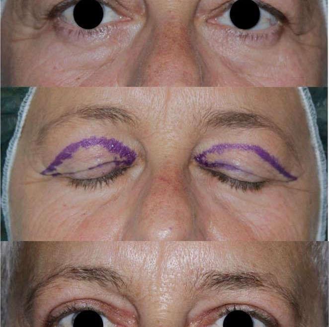 Chirurgia del ringiovanimento perioculare: la blefaroplastica superiore