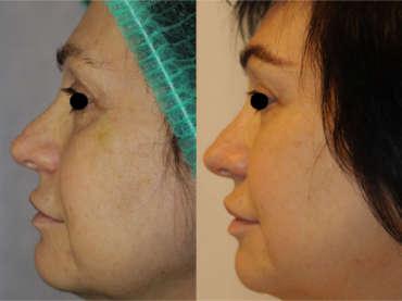 Liposcultura del volto: volume e ringiovanimento