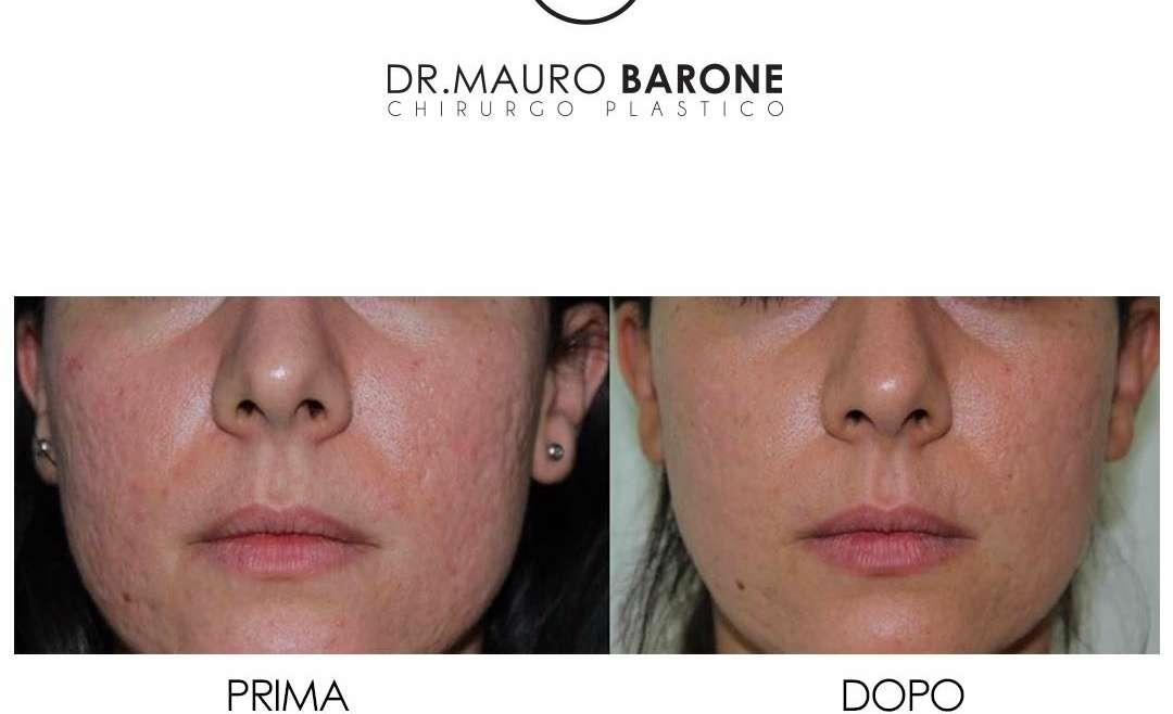 Trattamento delle cicatrici da acne: ecco il trattamento migliore