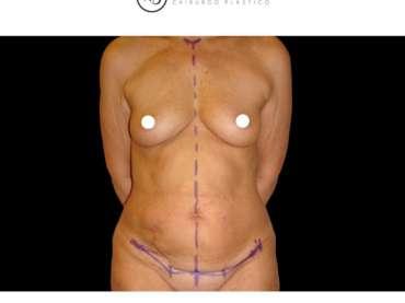 Qual è uno dei momenti più importanti per la chirurgia plastica? Il disegno!