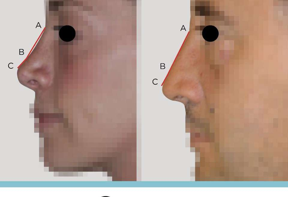 Gli angoli del naso