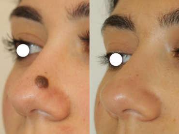 In Chirurgia Plastica i dettagli fanno sempre la differenza!