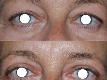 Blefaroplastica superiore: il primo passo per il ringiovanimento del volto