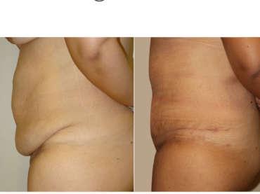 Addominoplastica post chirurgia bariatrica
