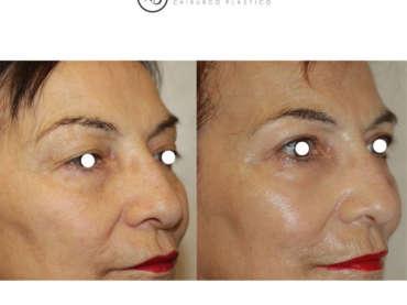 Lifting e Lipofilling del volto