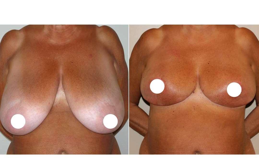 Correzione di mammelle tubulari e con ipertrofia di grado severo