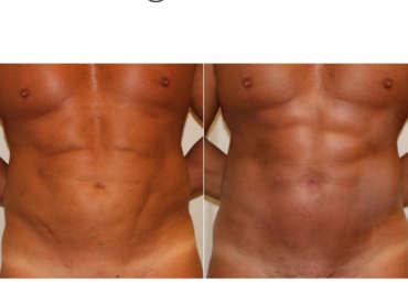 Correzione diastasi addominale su paziente bodybuilder