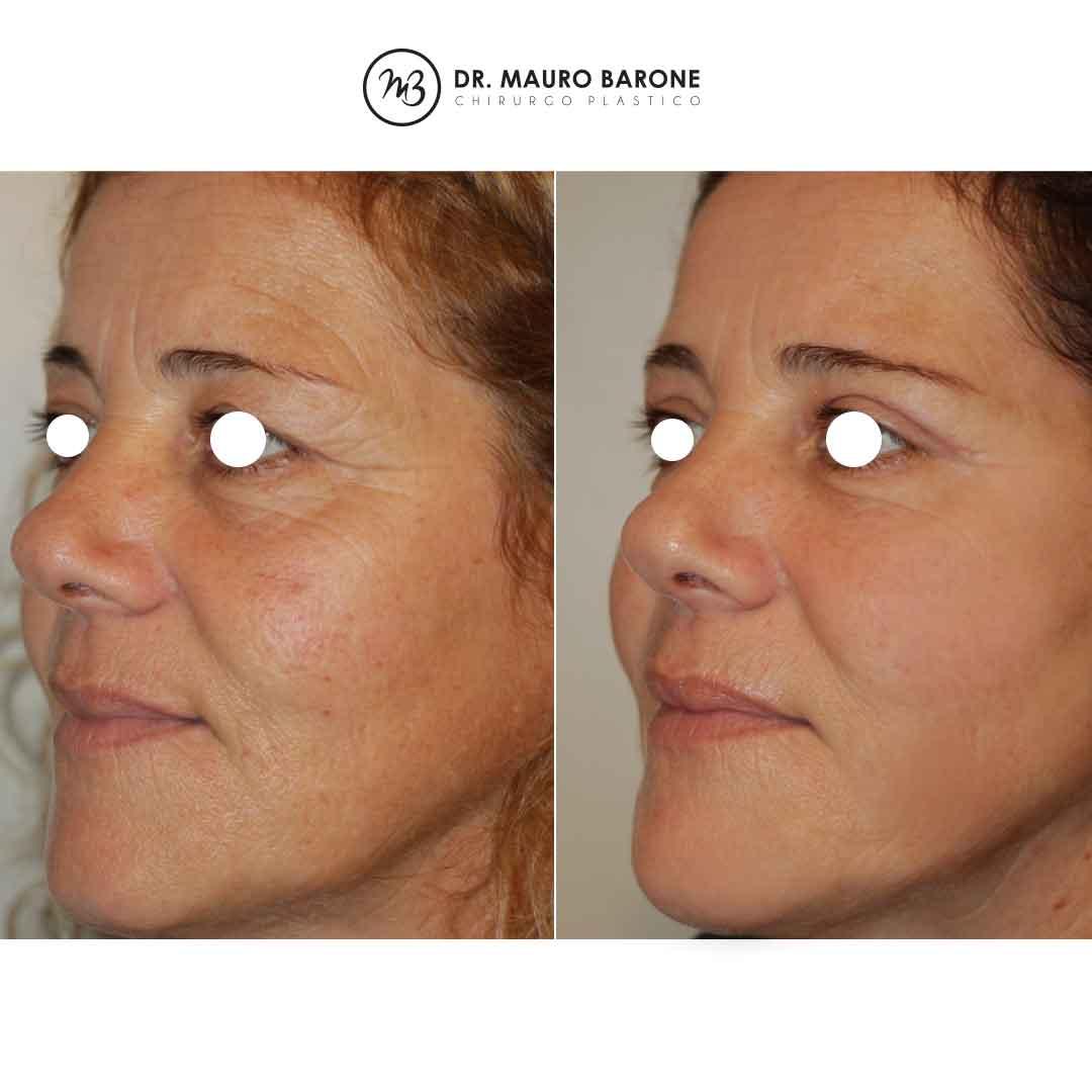 Ringiovanimento del volto con Blefaroplastica superiore e Lipostrutturazione