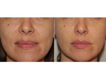 Laserterapia come soluzione per le cicatrici da Acne Icepick