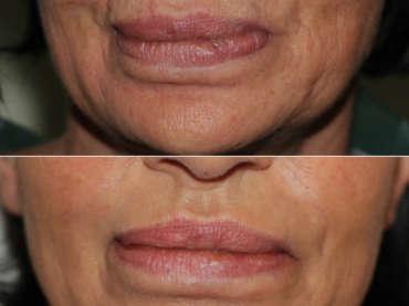 Ringiovanimento del terzo inferiore del volto