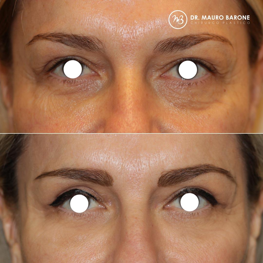 Ringiovanimento degli occhi e della regione perioculare