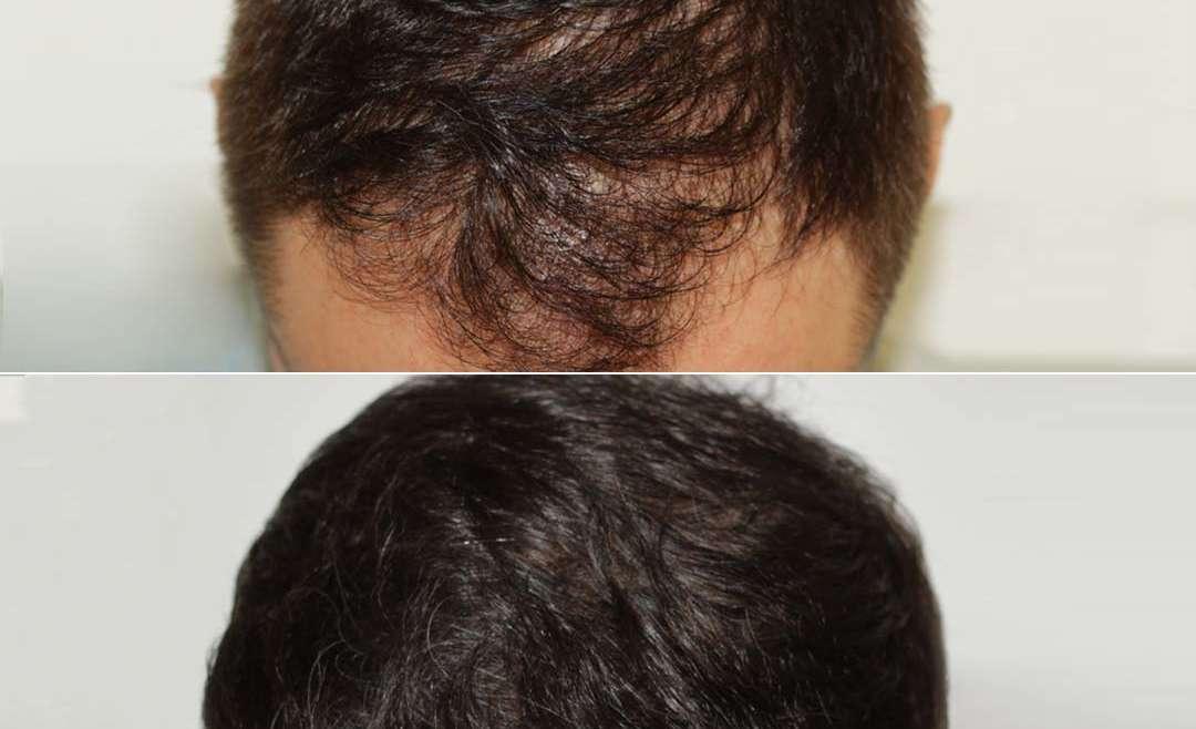 La tecnica FUT per il Trapianto dei capelli
