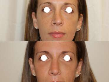 Correzione delle irregolarità del naso con il Rinofiller