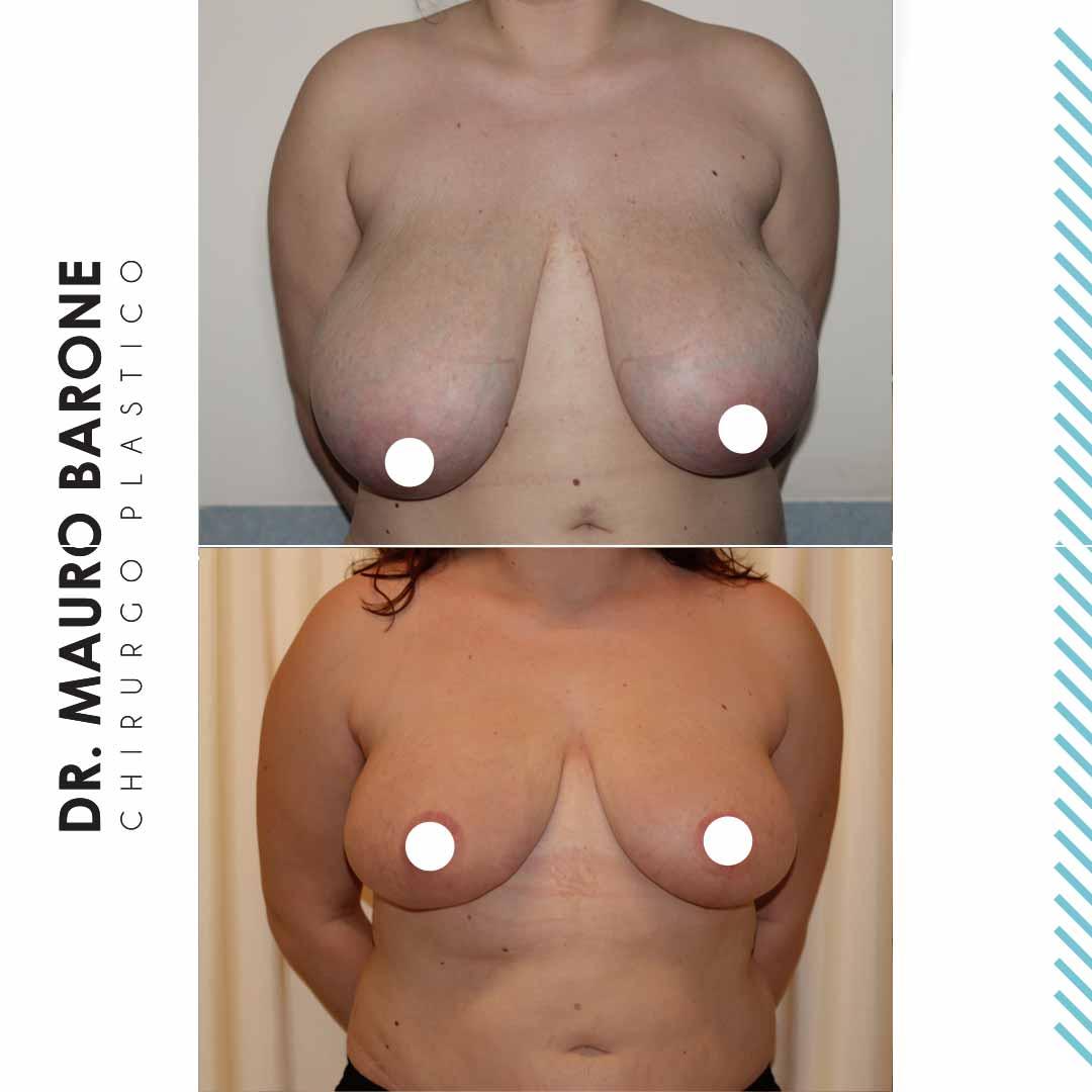 Correzione di un'asimmetria mammaria severa