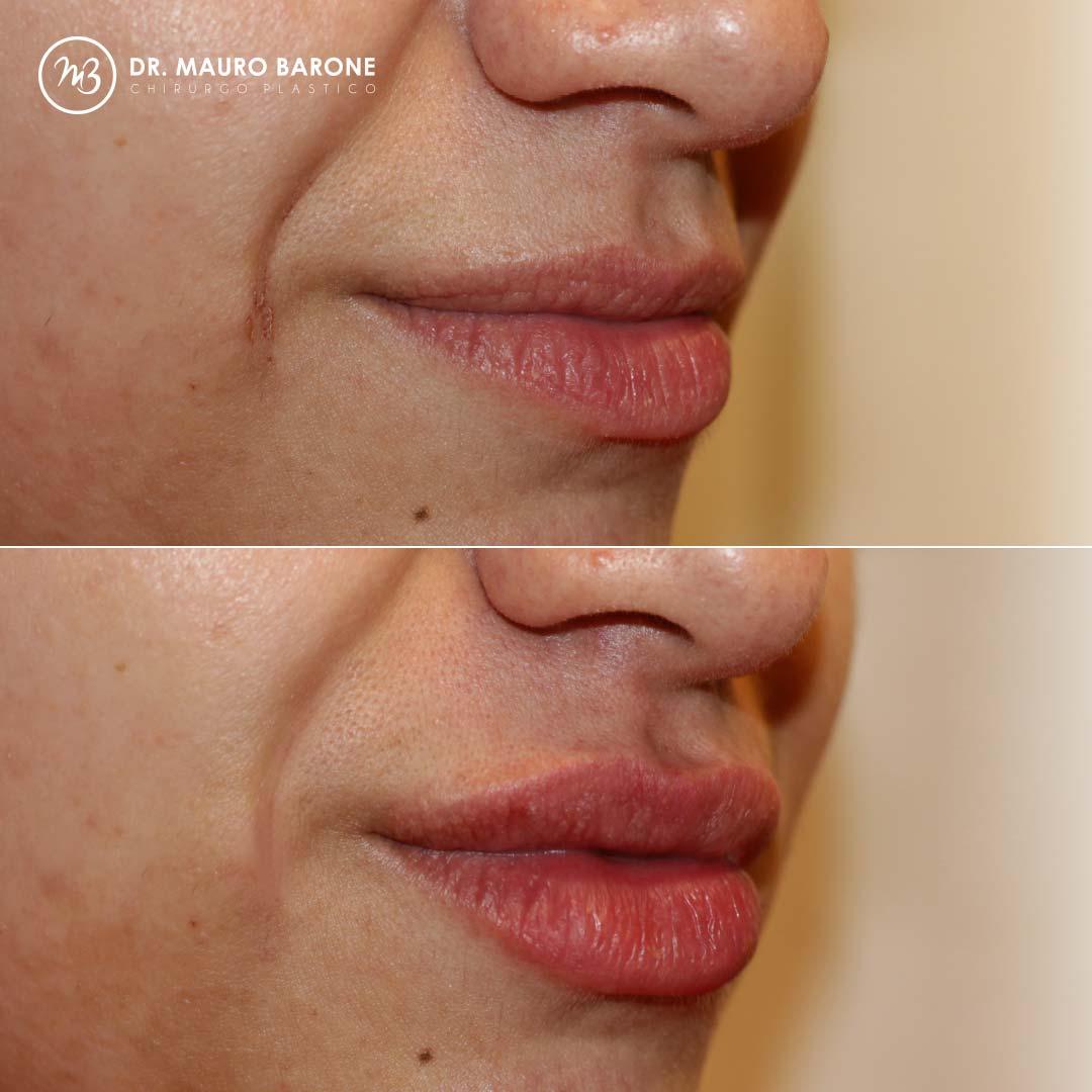 Filler labbra: il risultato naturale con il farmaco più adatto