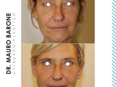 Ringiovanire il proprio viso con risultati naturali è possibile? Assolutamente si!