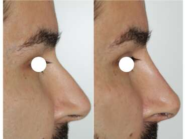 Rinofiller per correggere gli inestetismi del naso
