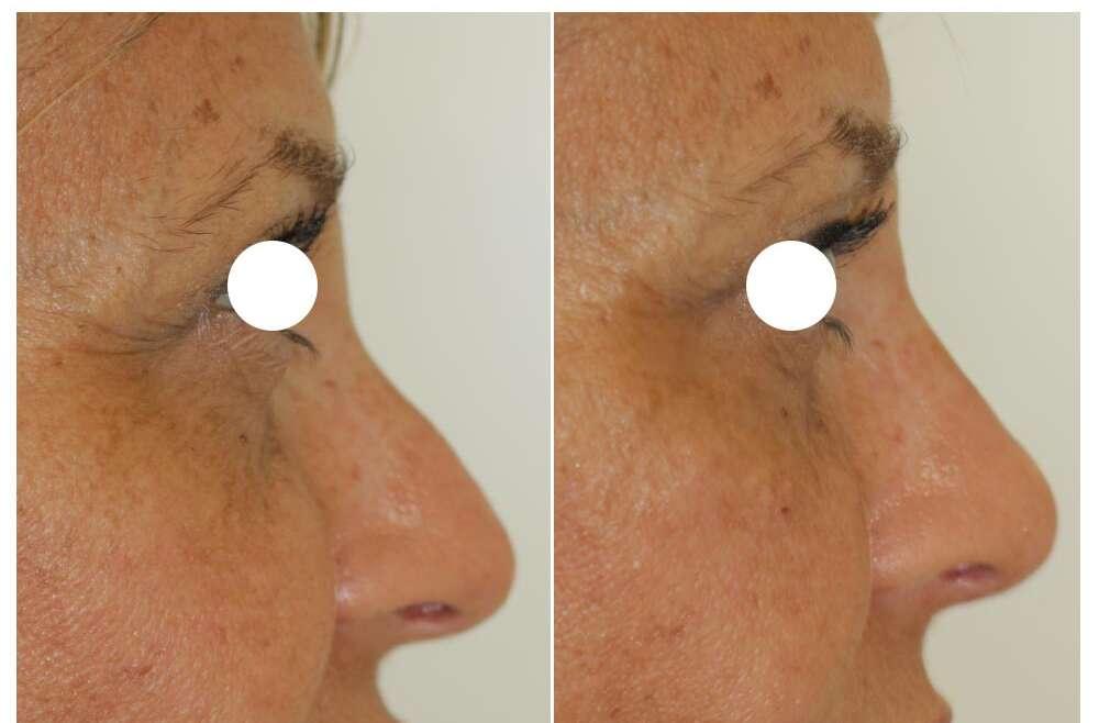 Rinofiller per il volto femminile