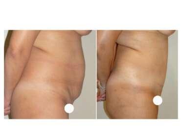 Il primo intervento di rimodellamento del corpo è l'addominoplastica