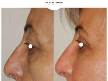 Blefaroplastica e lifting con lipofilling per il ringiovanimento del volto