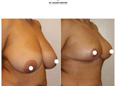 Mastoplastica riduttiva con riduzione di 2 kg di tessuto mammario