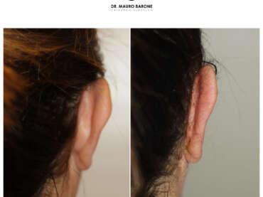 Otoplastica con riduzione della conca auricolare