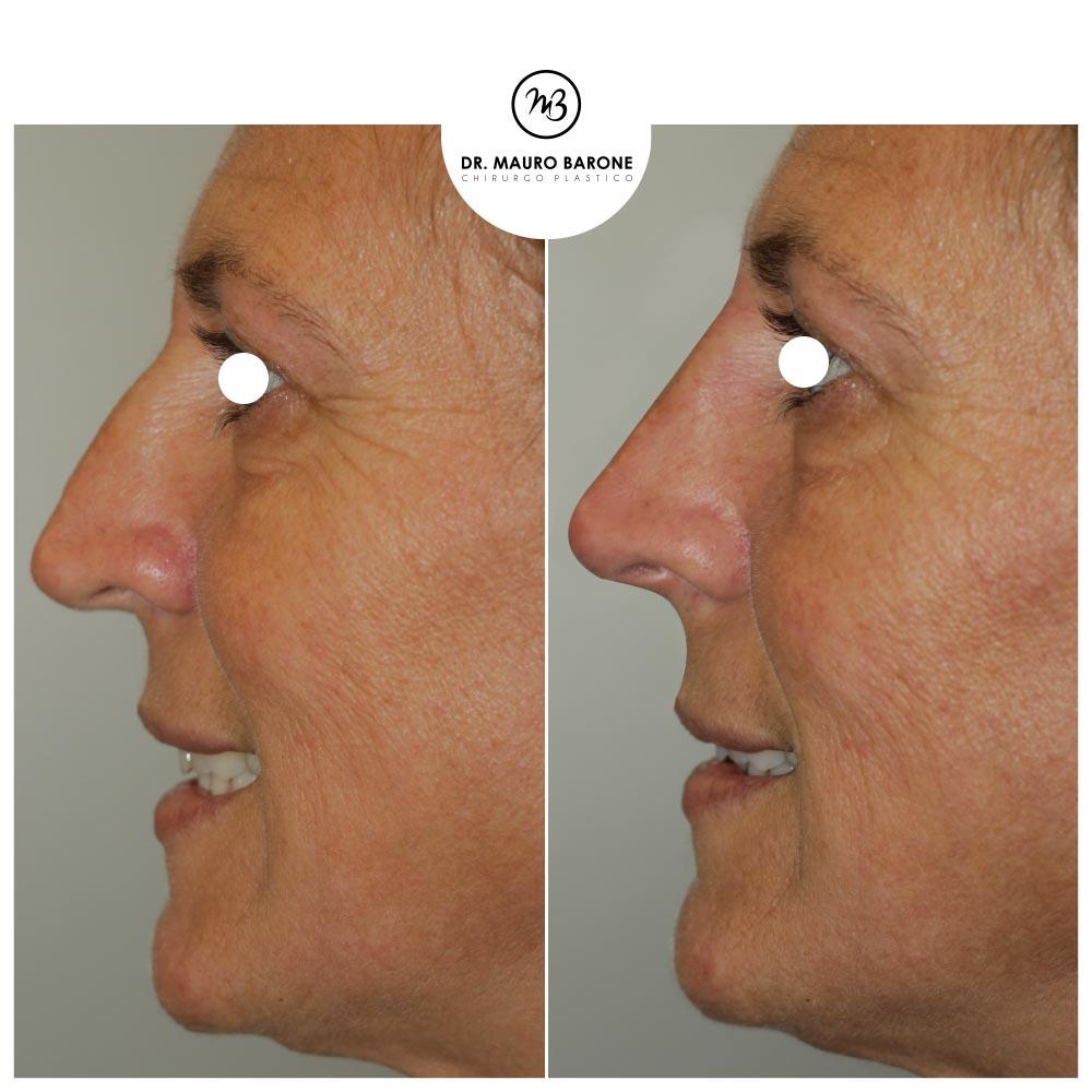Rinofiller per dare più sostegno alla punta e al dorso del naso