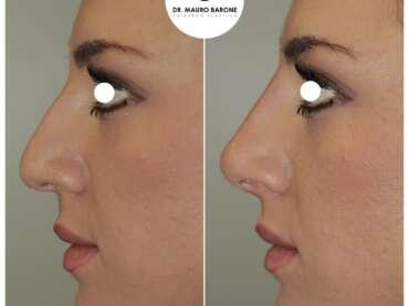 Rinofiller e rotazione della punta del naso