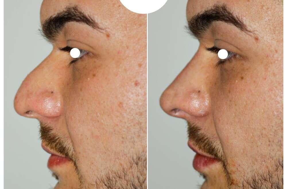Rinofiller per la punta cadente del naso