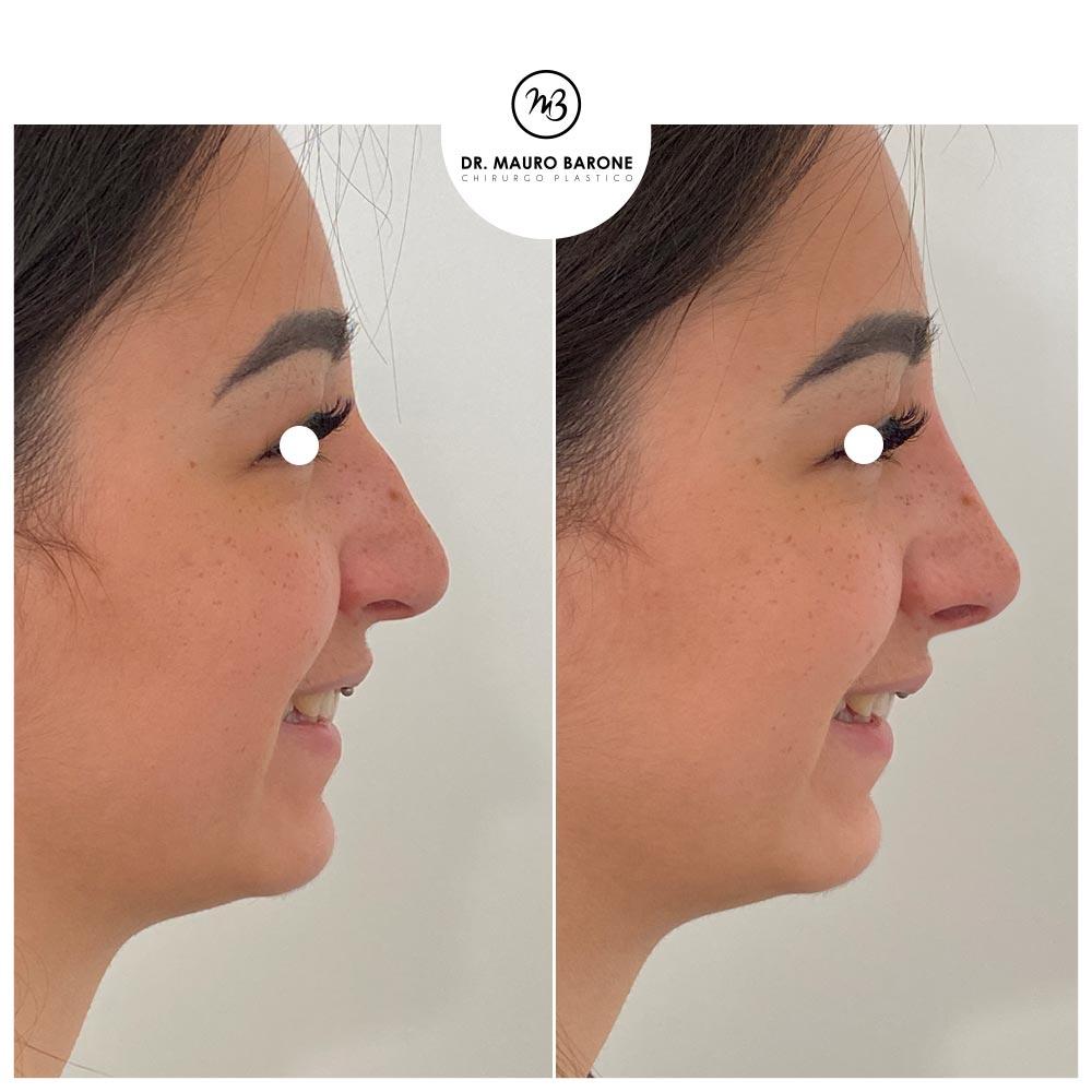 Rinofiller per armonizzare il dorso e sollevare la punta del naso