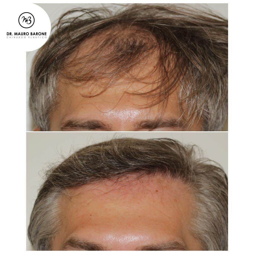 Trapianto di capelli con tecnica FUT