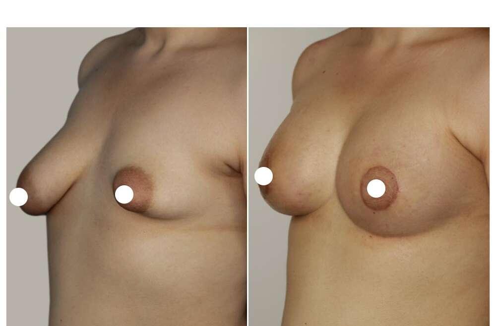Mammelle tuberose: correzione e impianto di protesi da 400 cc