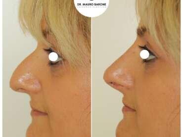 Rinofiller per ottenere una rotazione della punta nasale