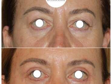 Lifting del terzo medio del volto, blefaroplastica superiore e lipofilling: l'obiettivo è il ringiovanimento dello sguardo