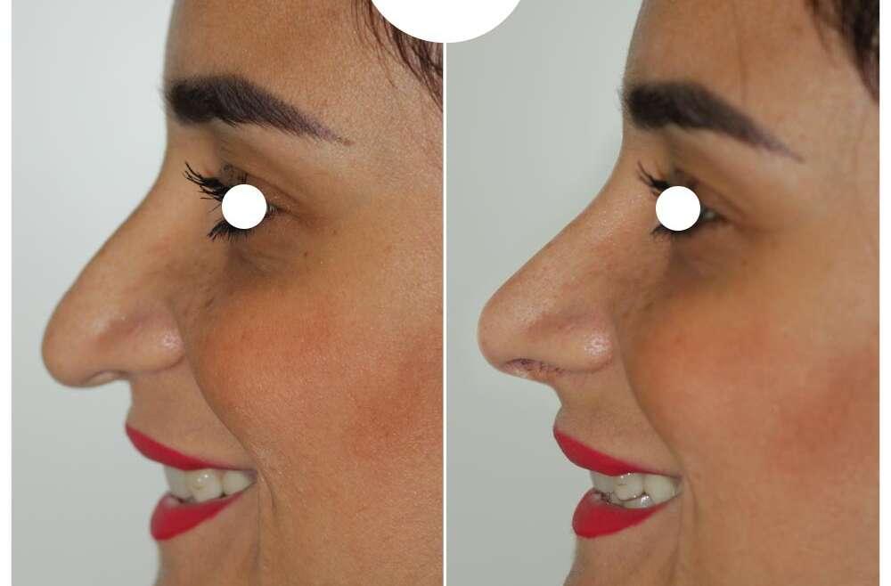 Rinofiller per un lifting della punta del naso